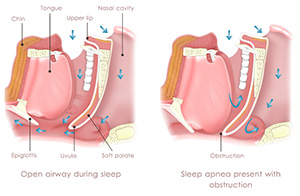Sleep Apnea Treatment in Glen Rock, NJ